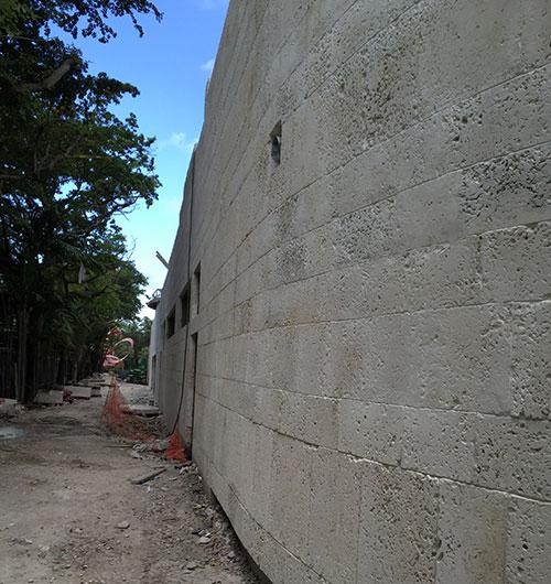 Oolite Veneer Install Miami